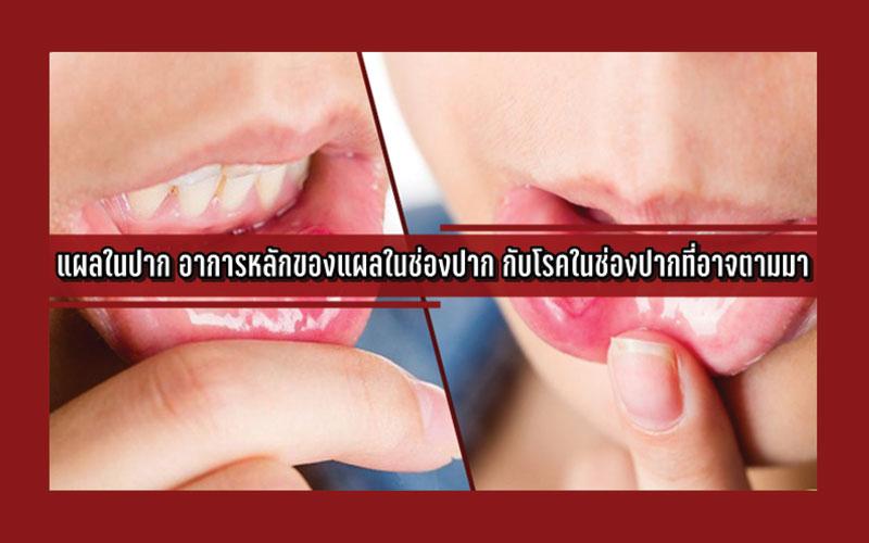 แผลในปาก